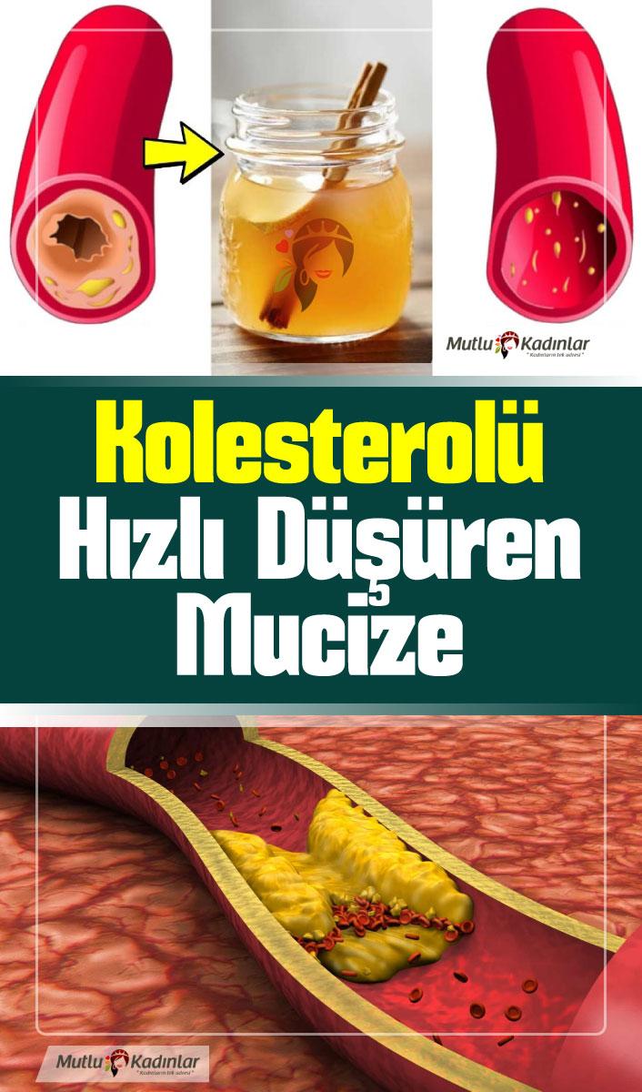 Yüksek kolesterolü düşüren bitkiler ile kolesterol tedavisi
