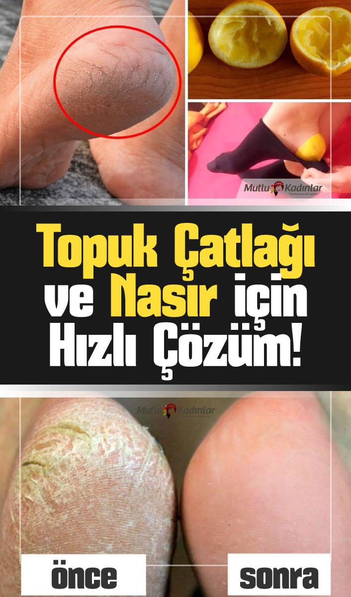 Limon kabuğu ile topuk çatlakları ve nasır için doğal çözüm!